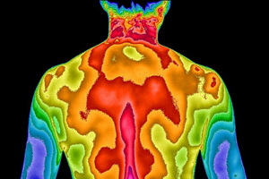 Back thermogram